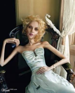 anorexic Girl